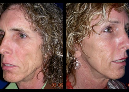 Forehead-type-2-brow-lift-facelift-03