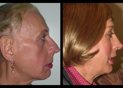 Forehead-type-2-brow-lift-orbital-recontouring-4-eyelids-blepharoplasty-cheek-implants-open-rhinoplasty-lip-fat-graft-02