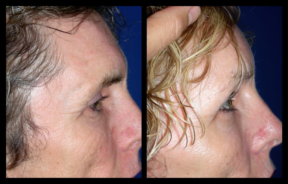 Forehead-type-2-brow-lift-facelift-02