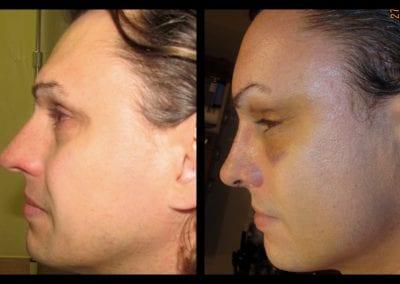 Forehead-type-2-brow-lift-orbital-recontouring