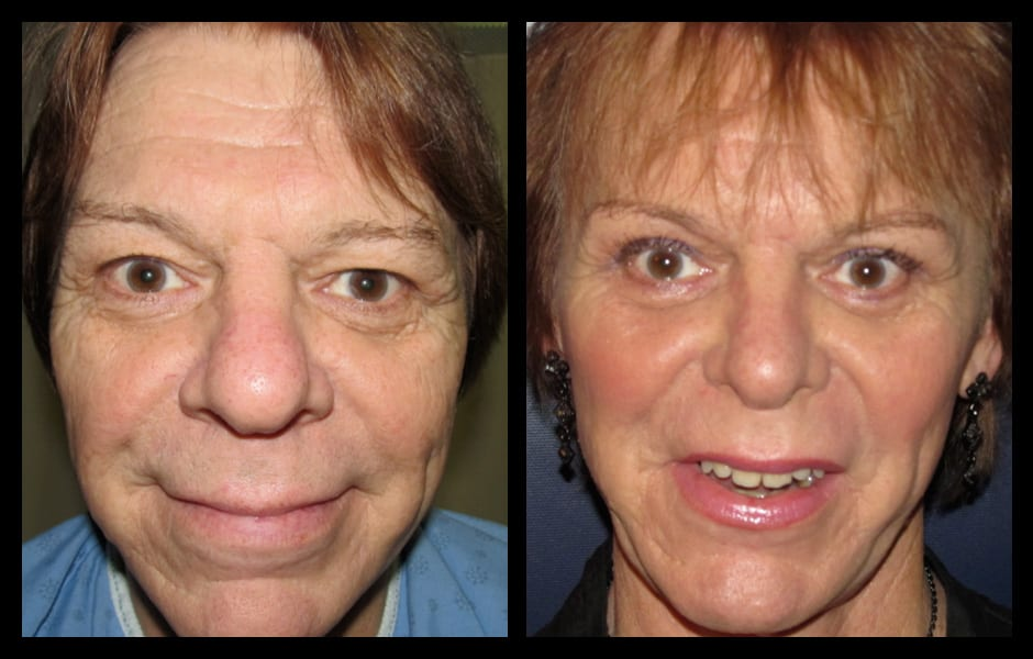 Forehead-type-2-brow-lift-upper-and-lower-blepharoplasty-01