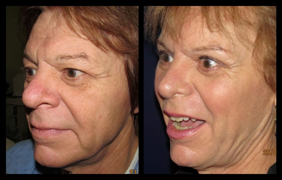Forehead-type-2-brow-lift-upper-and-lower-blepharoplasty-03
