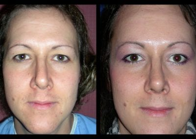Forehead-type-2-browlift-orbital-recontouring-open-rhinoplasty-01