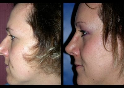 Forehead-type-2-browlift-orbital-recontouring-open-rhinoplasty-03