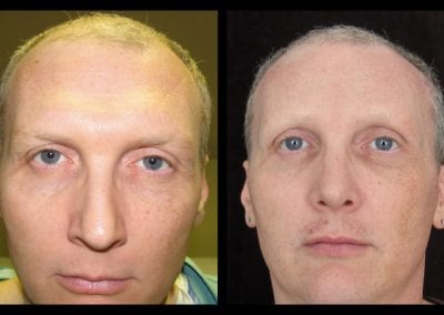 forehead-type-3-browlift-orbital-rim-recontouring-open-rhinoplasty-02