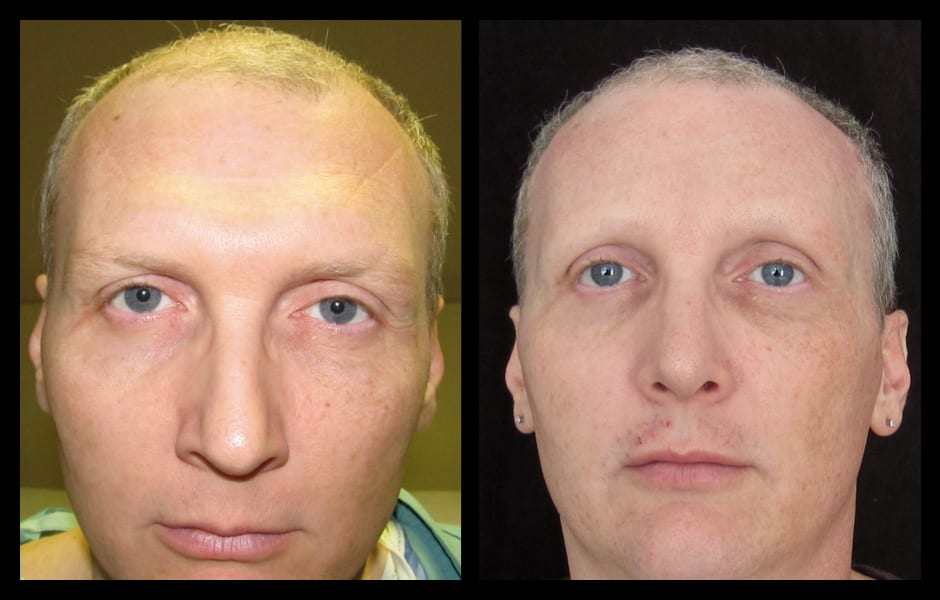 forehead-type-3-browlift-orbital-rim-recontouring-open-rhinoplasty-02