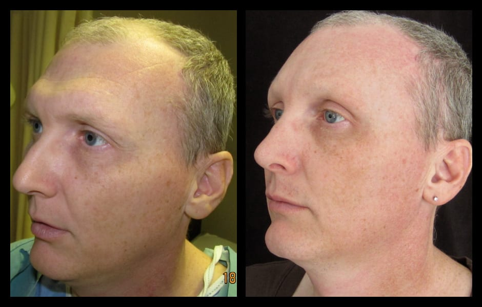 forehead-type-3-browlift-orbital-rim-recontouring-open-rhinoplasty-03