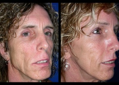 Forehead-type-2-brow-lift-facelift-01