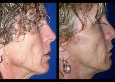 Forehead-type-2-brow-lift-facelift-04