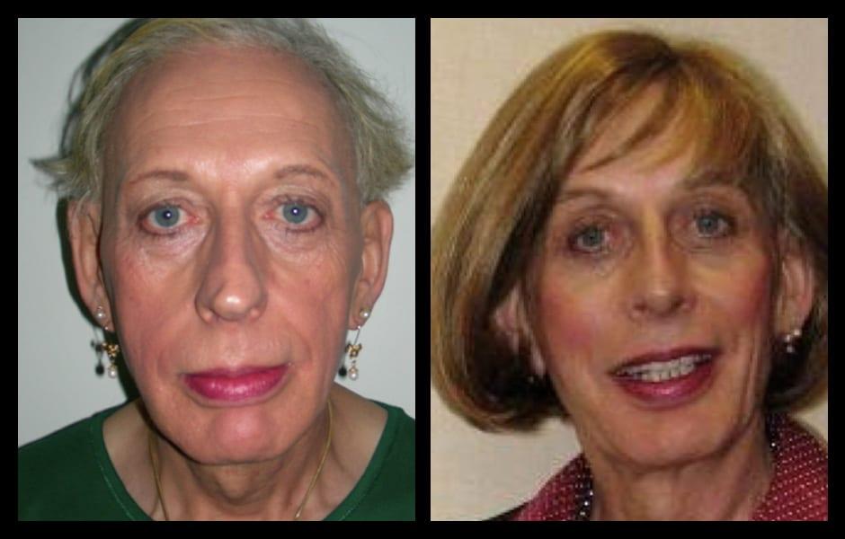 Forehead-type-2-brow-lift-orbital-recontouring-4-eyelids-blepharoplasty-cheek-implants-open-rhinoplasty-lip-fat-graft-01