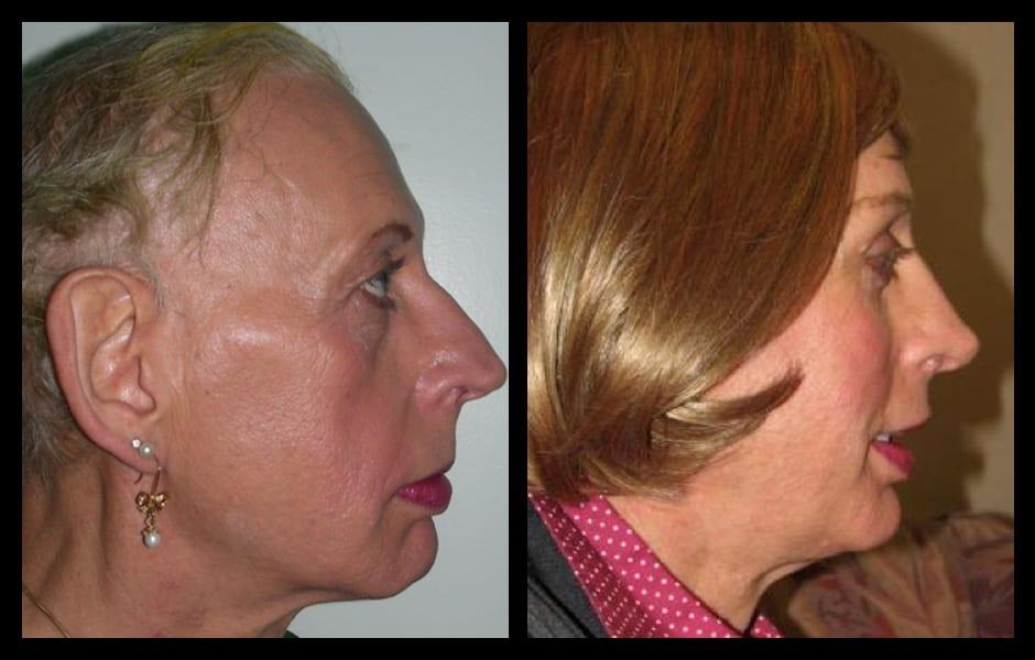Forehead-type-2-brow-lift-orbital-recontouring-4-eyelids-blepharoplasty-cheek-implants-open-rhinoplasty-lip-fat-graft-02