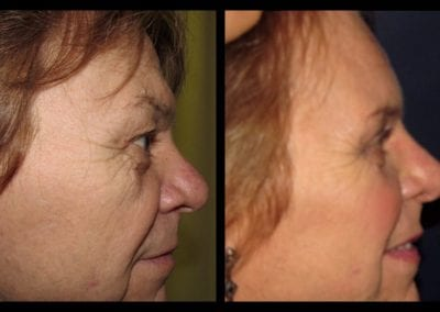 Forehead-type-2-brow-lift-upper-and-lower-blepharoplasty-02
