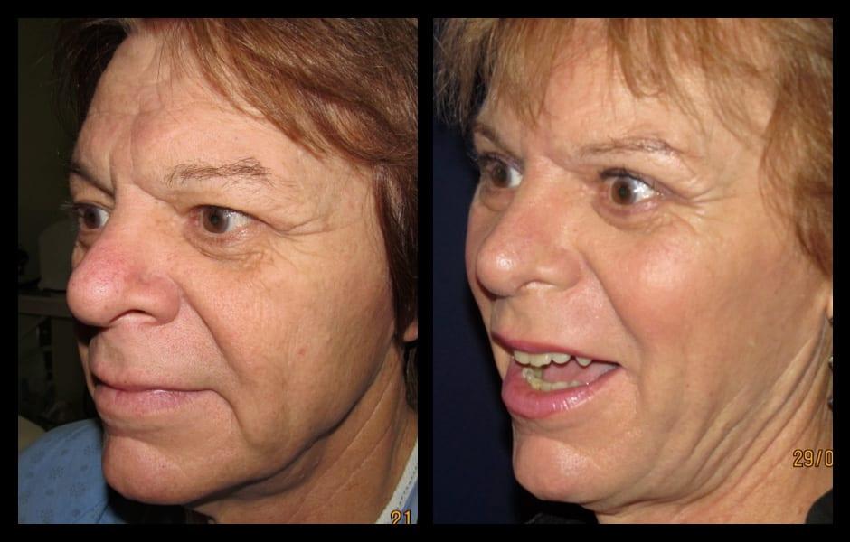 Choosing Facial Feminization - Dr. Eric Bensimon - FFS ...