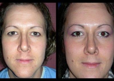 Forehead-type-2-browlift-orbital-recontouring-open-rhinoplasty-01