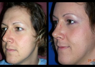 Forehead-type-2-browlift-orbital-recontouring-open-rhinoplasty-02
