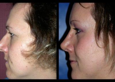 Forehead-type-2-browlift-orbital-recontouring-open-rhinoplasty-03