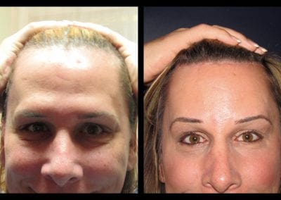 Forehead-type-3-browlift-orbitotemporal-recontouring-scalp-advancment-01