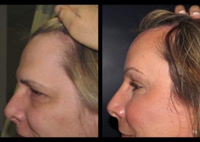 Forehead-type-3-browlift-orbitotemporal-recontouring-scalp-advancment-02