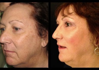 forehead-2-brow-lift