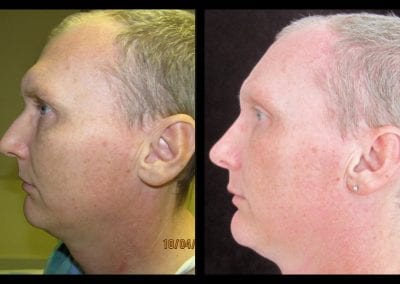 forehead-type-3-browlift-orbital-rim-recontouring-open-rhinoplasty-01