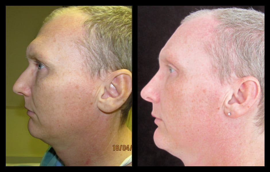 Remarkable, facial plastic surgery type think, you