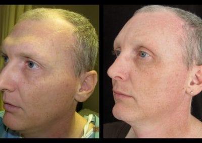 forehead-type-3-browlift-orbital-rim-recontouring-open-rhinoplasty-03
